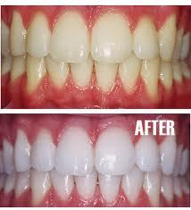 What is the damage to the process of bleaching teeth?