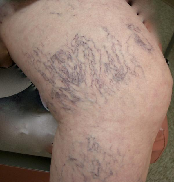 I'm going to be taking a long airline flight after sclerotherapy, what do I do?