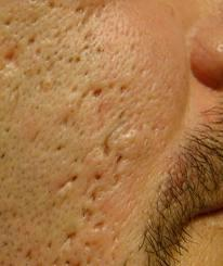 I am wondering how to cure indent scars from face naturally?