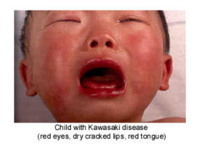 How to help a child suffer from kawasaki disease?