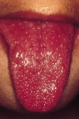 Which is kawasaki disease, and their signs and symptoms?