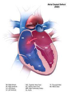 Could you explain what is a atrial septal defect?