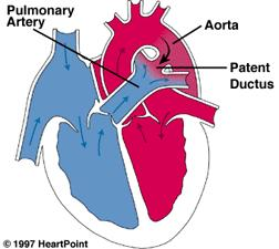 Can you tell me the long-term effects of a repaired PDA (patent ductus arteriosus) for humans?