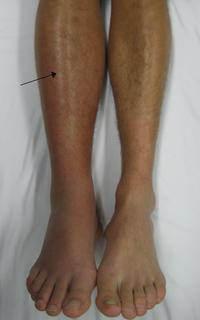 Please explain what are some symptoms of deep vein thrombosis?