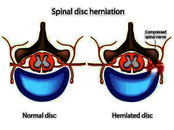 Slight disc bulge at l4/l5. Treatment needed? Will traction make disc go back in? Or just back exercises will do?