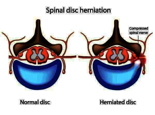 Cervical and lower lumbar intervertebral discs are dessciated, diffuse disc bulge with annular tear at l4-5 level. How can be cured?