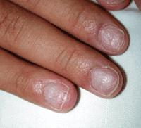 I was wondering what are some causes of nail pitting besides psoriasis?