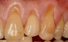 Can there be methods for preserving/ healing tooth enamel from further acid erosion?