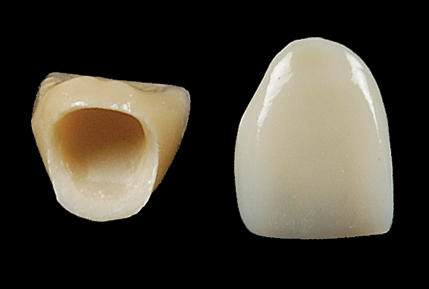I broke my porcelain crown on front tooth.     I want to know that when i will again place a new crown, my tooth structure will again be remove?