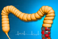 Ulcerative colitis - pancolitis: how long before the medicine helps?