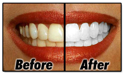 Can teeth whitening strips expire?