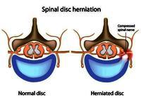 What is a good pain management strategy for slip disc with minimal drug dependence?
