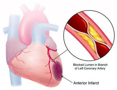 end stage ischemic cardiomyopathy - doctor answers on healthtap, Skeleton