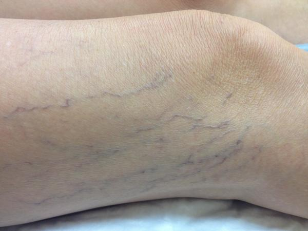 Can high blood pressure cause spider veins and visible blue veins in the breasts?