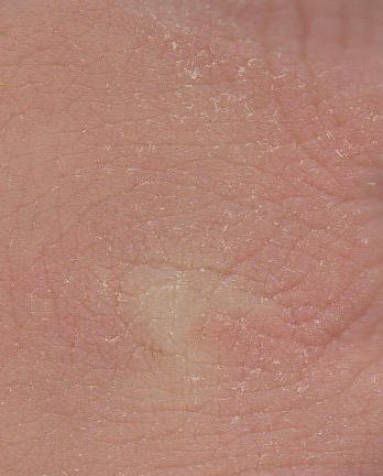 Sores and moles itchy hurtful black and scaly?