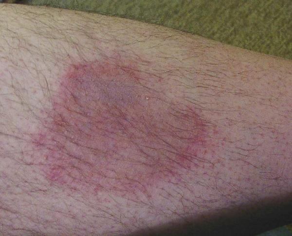 dark itchy patches on skin