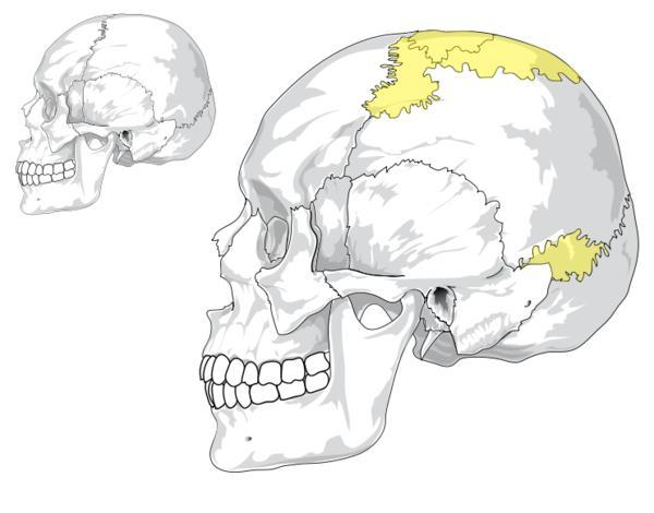 Would pressure applied to someone's skull by hand, be capable of changing the skull shape, if applied hard or long enough?