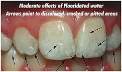 Can you tell me that it is caused by an over exposure to fluoride which is in your drinking water?