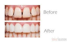 Can there be any cheaper, long-lasting alternatives to dental veneers?