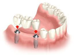 Dental implants any other options, what to do?