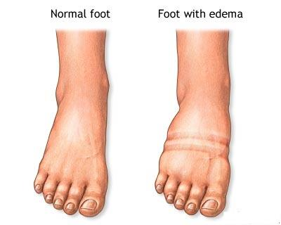 Can docs explain what does pedal edema mean in medical terms?