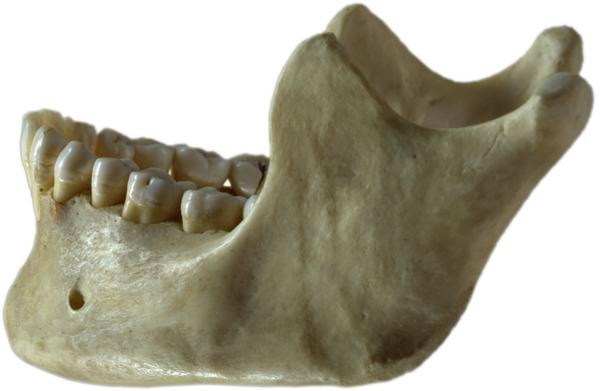 Can there be any non-surgical options for dealing with benign jaw bone tumors?