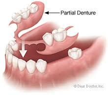 Tell me about valplast partial denture?