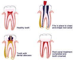 Could you tell me specifically what a root canal is?
