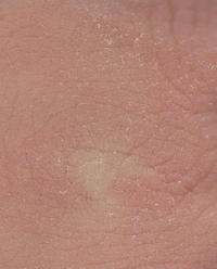 I have a case of skin dryness and patches around my upper arms and rings appearing from time to time on treatment but no change for 8yrs now. Advice?