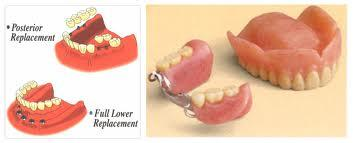 Hi doctors, was just wondering what is a partial over denture?