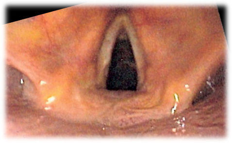 What to do for vocial cord dysfunctiom?