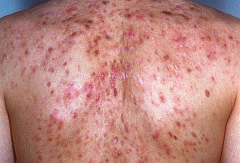 What is the beat solution for severe back, chest, and facial acne (w&b heads). Body washes, o.T.C medications etc. Note: salyitic acid makes it worse.
