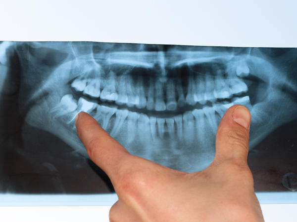 Do x-rays always detect the need for a root canal? Severe pain. Lower right crowned back molar & sensitive gum line on right side. X-rays perfect.