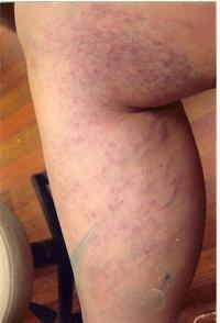Please let me know if there is a way to prevent spider veins?