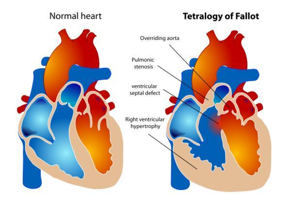 What happens with ?Tetralogy of fallot?