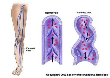 What do you think I should do when a varicose vein in the leg ruptures consecutively 4 times?