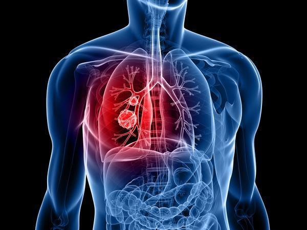 If a size of lung nodule increases from 8mm to 20 mm , is it always cancer, or could it stil be an infection causing increase in size , thanks?