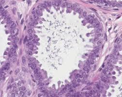 My test results came back it is flat epithelial atypia can u please explain in laymans terms what this is. I have very to see a surgeon?