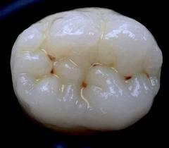 How likely is it that dark staining in the pits and fissures of teeth is just that - staining?