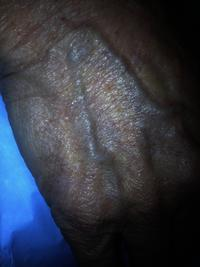 Tips for stop apparance of vein from hand?