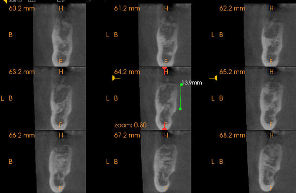 A 3d CT scan of the jaw shows just enough height and width for dental implant. Does it also show the bones hardness to dds where the implant would go?