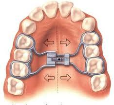 Can you tell me, are palate expanders supposed to hurt?