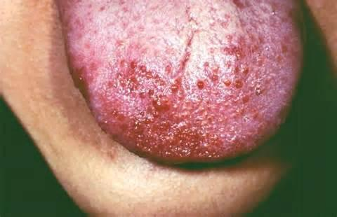 What are the signs of herpes on the tongue?