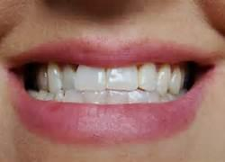 Can you tell me what it is called when you top teeth are directly over the bottom teeth when smiling?