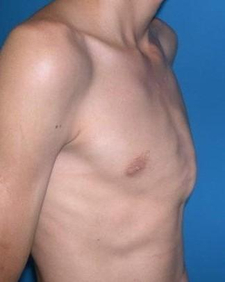 What are ways of treating pectus carinatum?