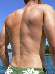 I got a rash after swimming in reservoir. What should I do?