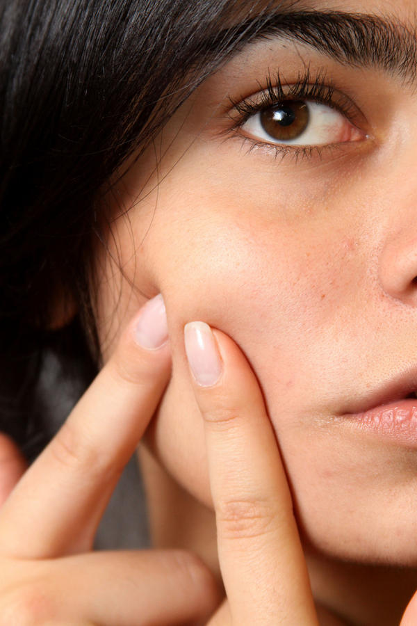 How to get rid of pimples and acne, what to do?