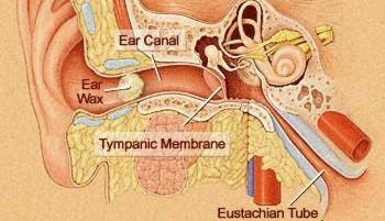 Can ear irrigation be done at home to clean out wax? I had my ear cleaned out two weeks ago at doctor wax is back not allowed to use qtip wax removal