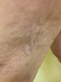 What causes of small veins visible on inner thighs?