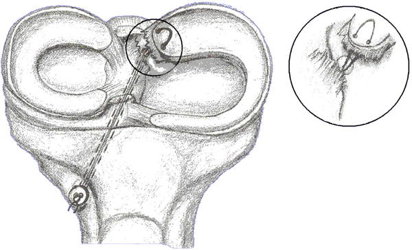It says in my operative notes that there is no evidence of meniscal tears. Then I have an MRI and it shows that I have a diplacement of mensical root?